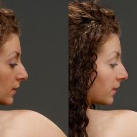 Retouch Example by Bob in Bob Freund
